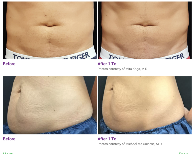 truSculpt® 3D before and after
