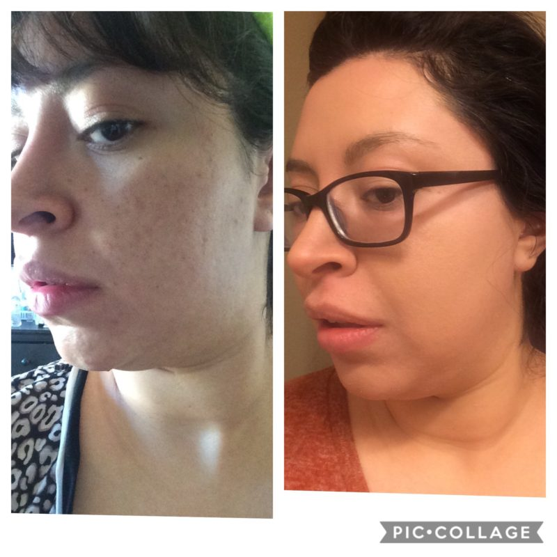 CO2 Fractional Laser Treatment Before and Afters