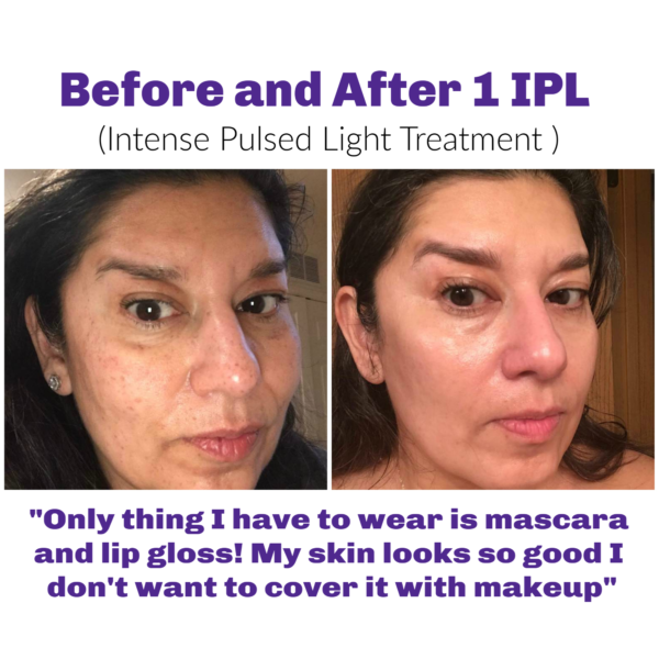 intense pulsed light facial before wand after treatment