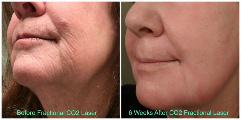 CO2 Fractional Laser Before & After
