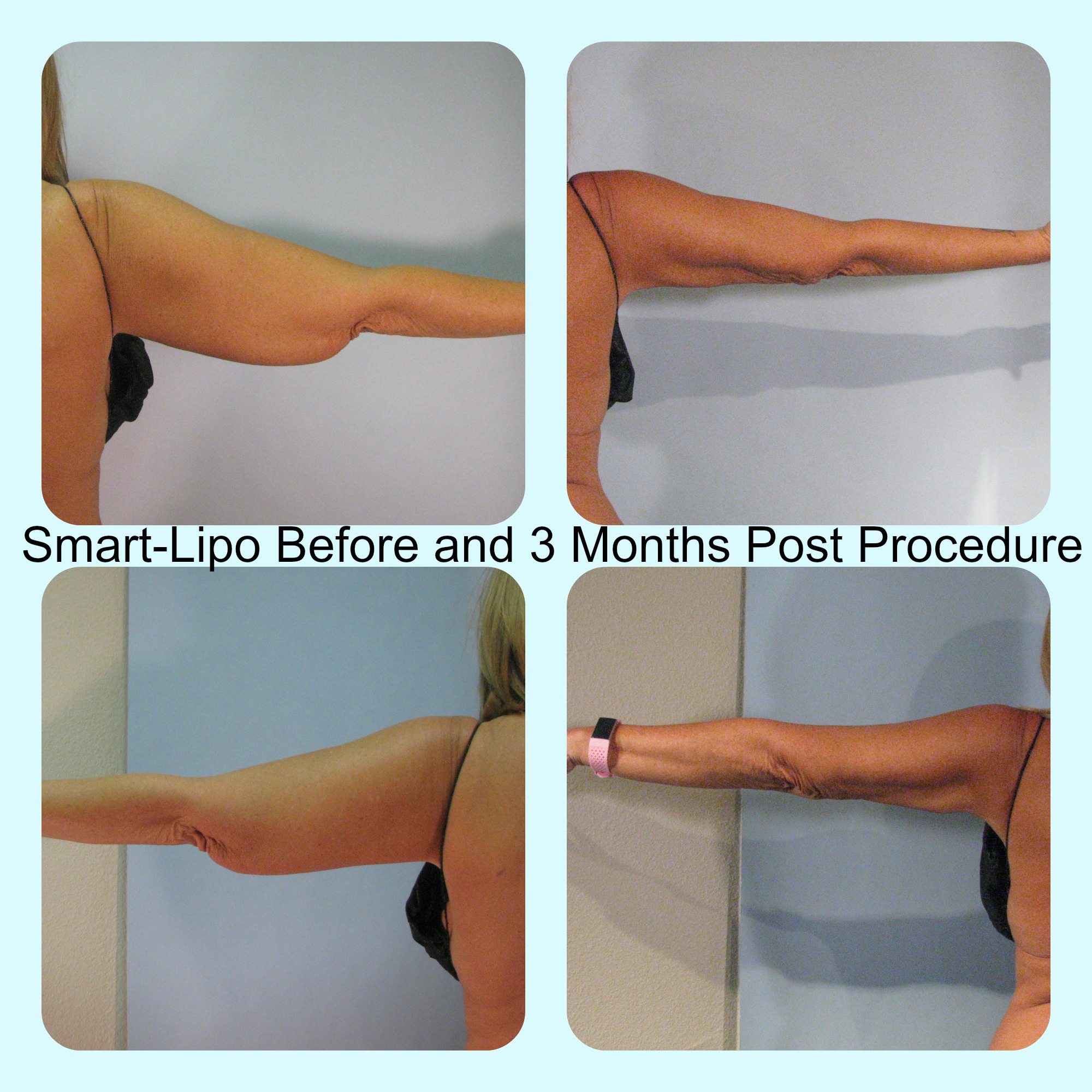 Cynosure SmartLipo Before and After results on arms