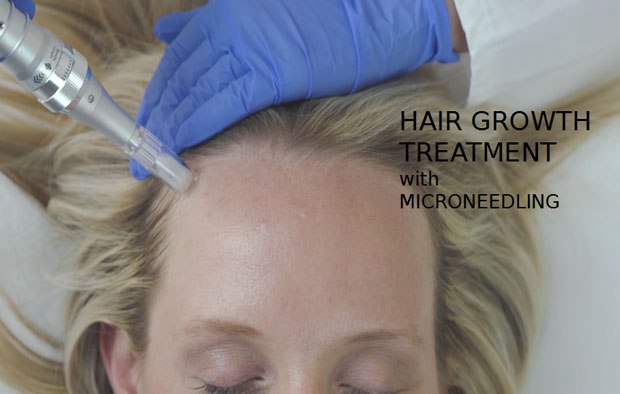 hair growth micro needling patient